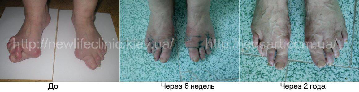 После оперативного удаления косточек на ногах лазером в нашей клинике они не возвращаются