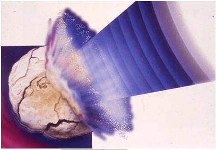 Дробление камней органов мочеполовой системы